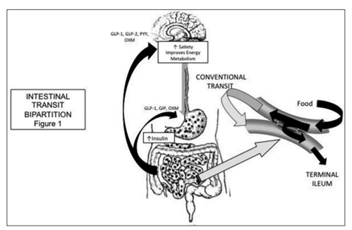 Paradigm Of Remission Of Diabetes Mellitus Type 2 Through The New